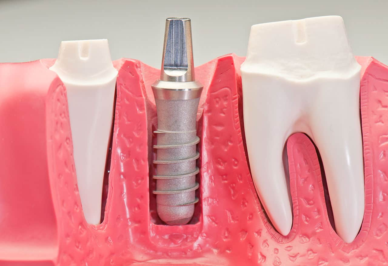 Boeriu Implant Dentistry - Single Tooth Implant