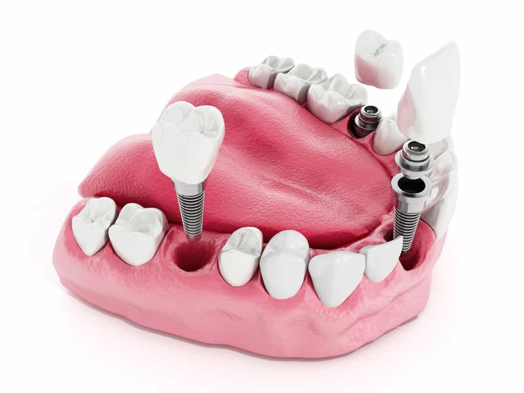Multiple Teeth Replacement - Boeriu Implant Dentistry - Kitchener Dentist