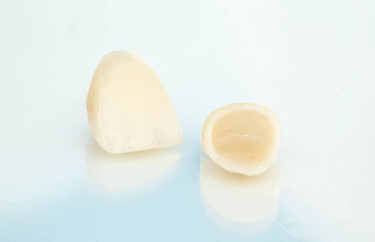 Porcelain Crowns - Boeriu Implant Dentistry - Kitchener Dentist