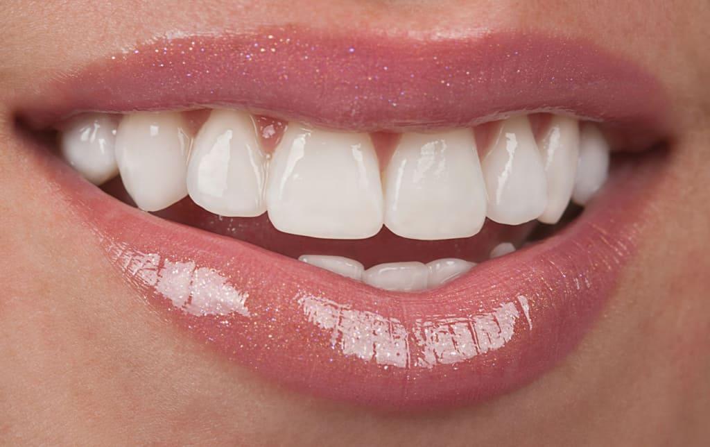 Porcelain Veneers - Boeriu Implant Dentistry - Kitchener Dental Office