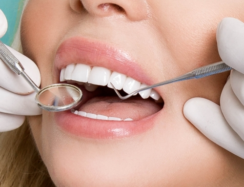 Three Types of Dental Cleanings
